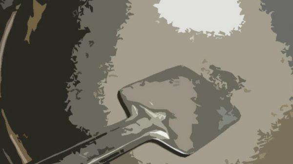 উচ্ছেদে গিয়ে খুনতি'র আঘাতে চিকিৎসাধীন হাসপাতাল স্টাফ